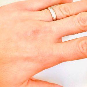 foto Tiziano Ferro anello Victor Allen marito