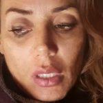"""Daniela Martani confessa: """"Quando ero all'Isola hanno aggredito…"""""""